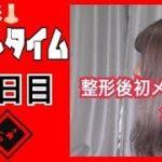 【鼻整形】ダウンタイム10日目【初メイク】
